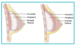 breast-implants-birmingham-diagram