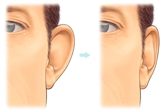 ear-correction-surgery-otoplasty
