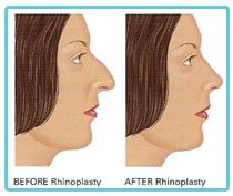 rhinoplasty-nose-correction