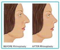 rhinoplasty-nose-correction