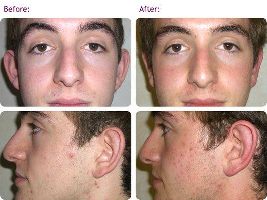 otoplasty-ear-correction-surgery