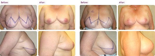 breast-reduction-surgery-birmingham