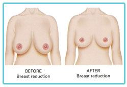 breast-surgery-reduction