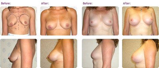 breast-uplift-surgery