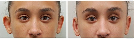 ear-correction-before-after