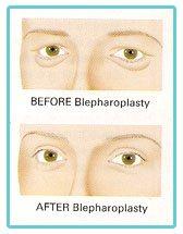 eye-lid-surgery-birmingham