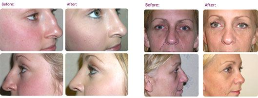 rhinoplasty-nose-job-before-after-photos