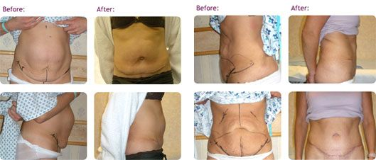 tummyt uck or abdominoplasty