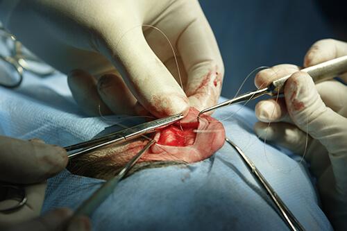 ear reshaping surgery