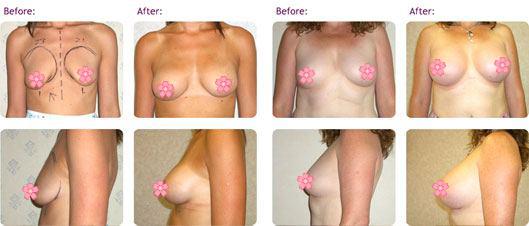 breast-implants