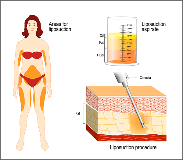 liposuction-procedure-target-areas