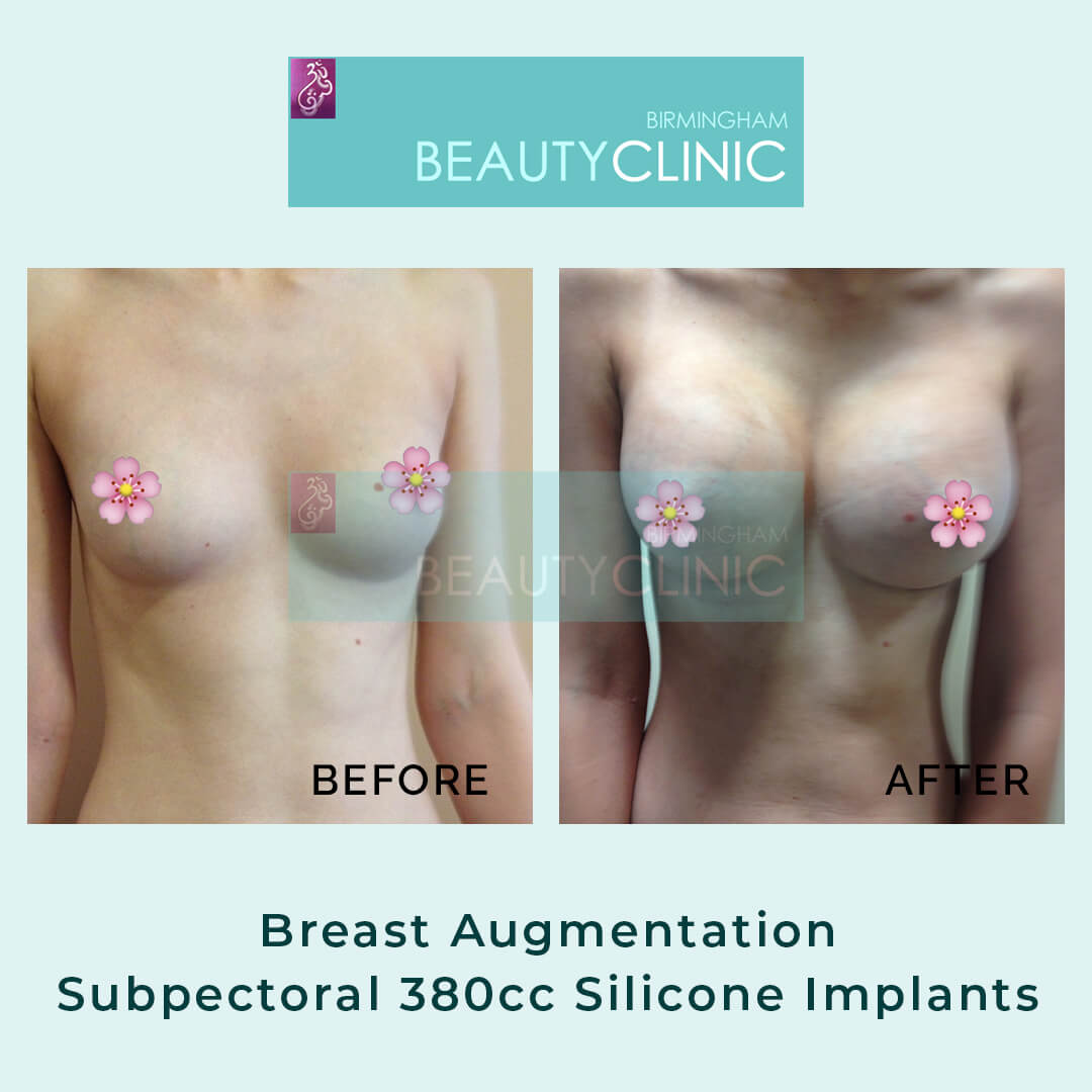 Breast Augmentation-Subpectoral-380cc