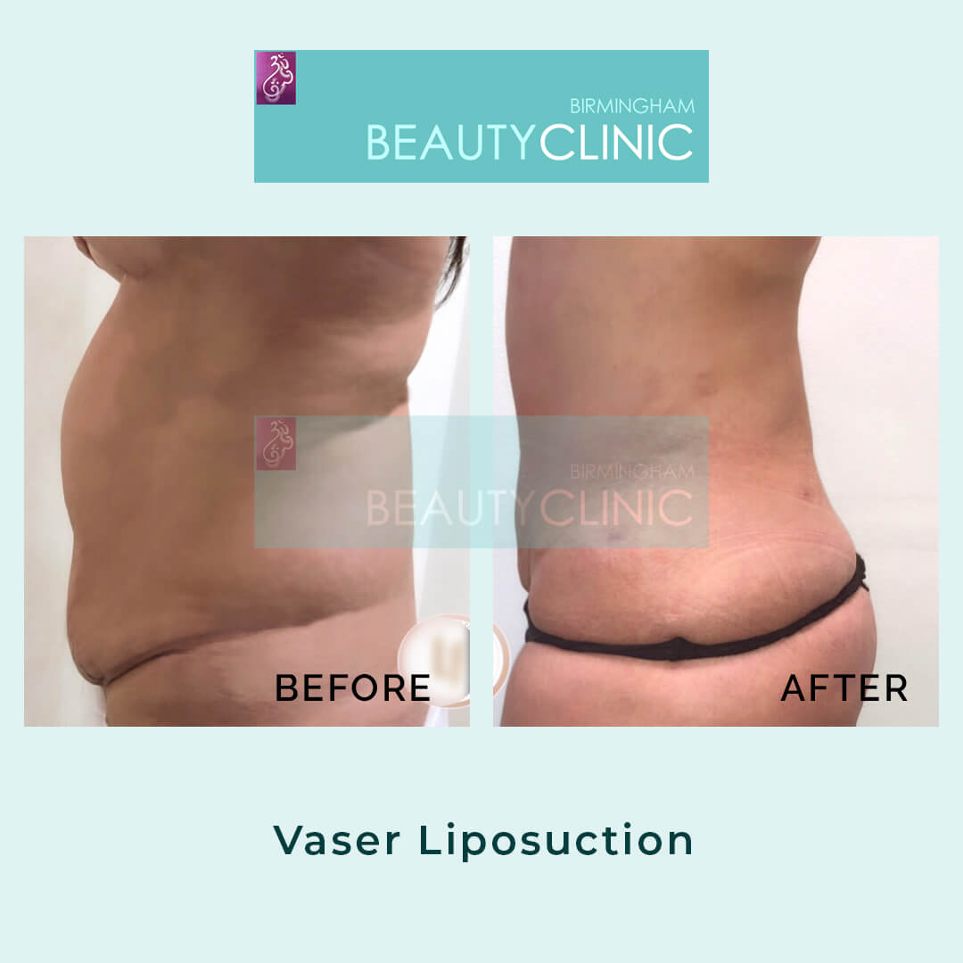 vaser liposuction before after