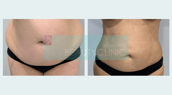 mini stomach liposuction before and after